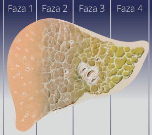 Marskość wątroby - fazy choroby