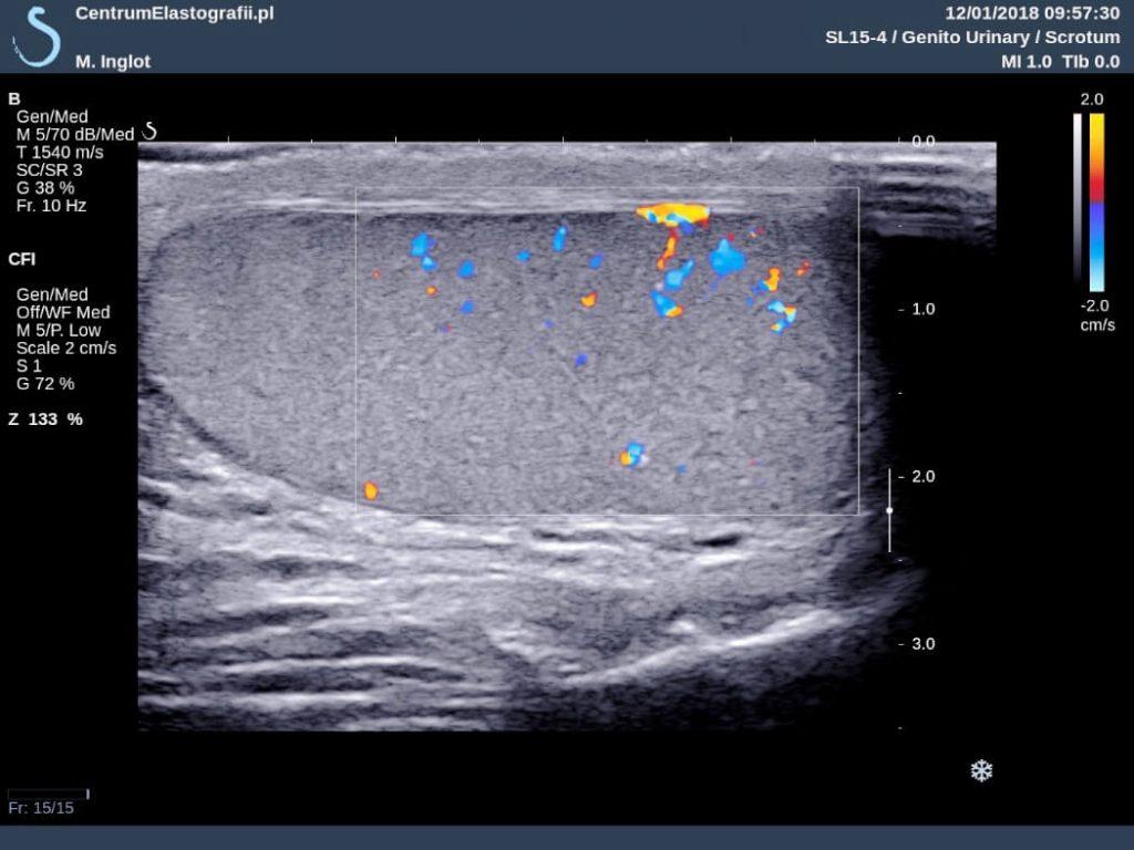 prawidłowy obraz USG jądra z opcją Color Doppler pokazującą przepływ krwi w jądrze