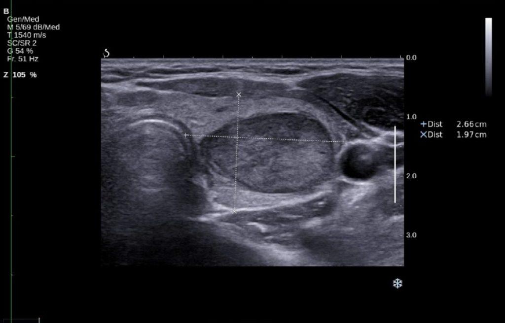 Badanie USG tarczycy - zdjęcie z aparatu